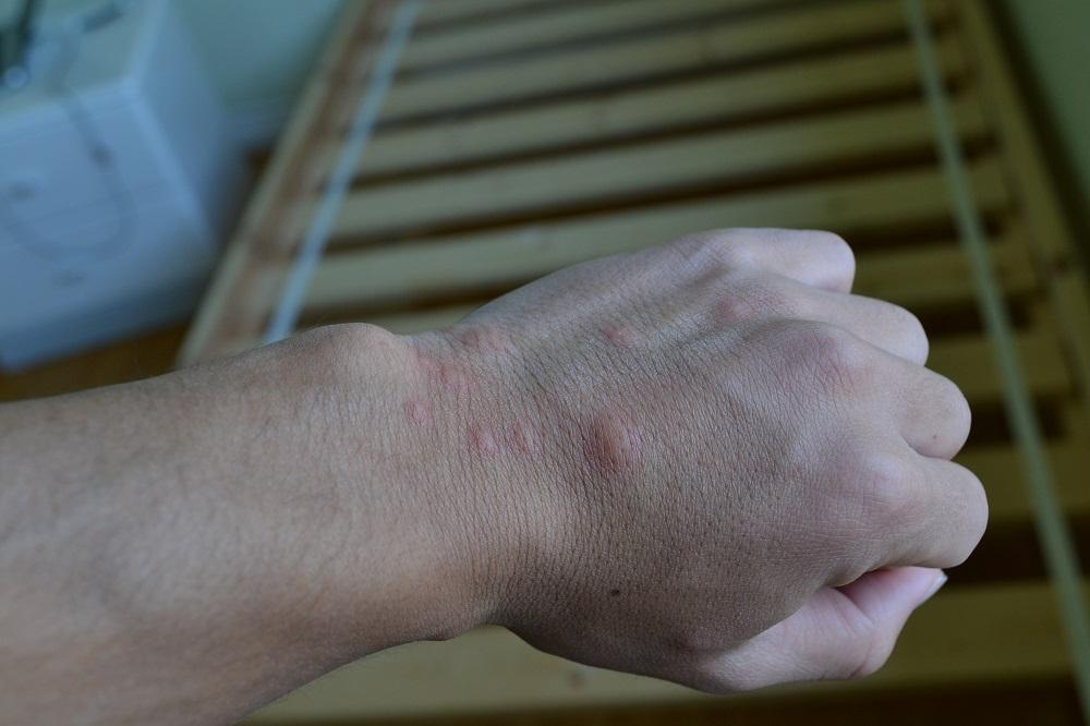 南京虫とその症状の画像あり|かゆみがヤバイから旅行先でできる対策とか載せとく。